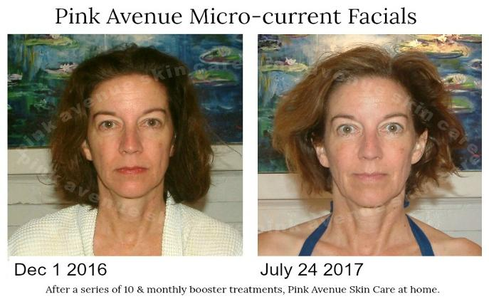 best micro current facial, Toronto, ON, Pink Avenue Skin Care