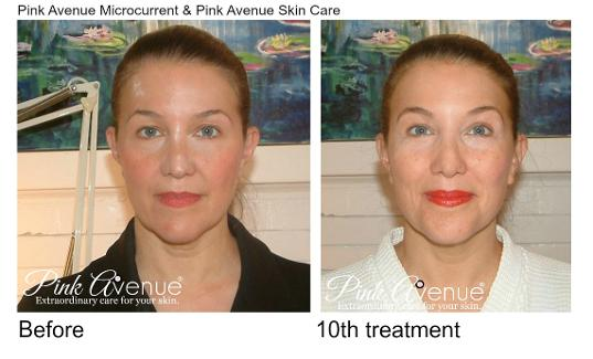 Best Micro Current Facial, Pink Avenue, Toronto, ON